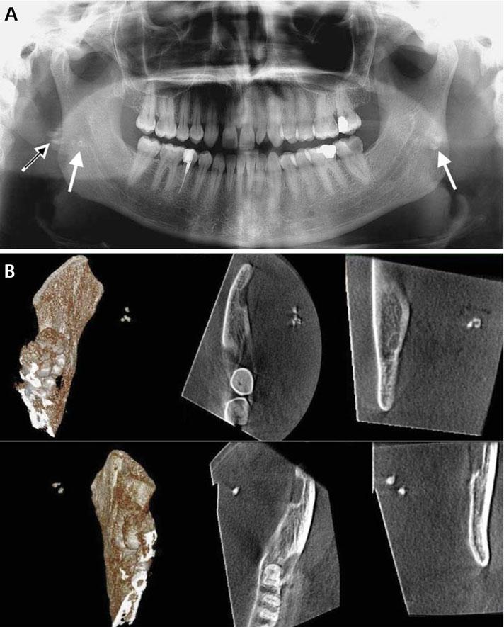 Bacterial Tonsil Stones Symptoms