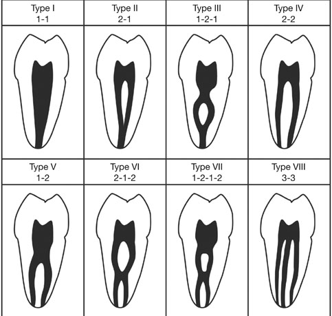 Characterization Of Mandibular Molar Root And Canal Morphology Using